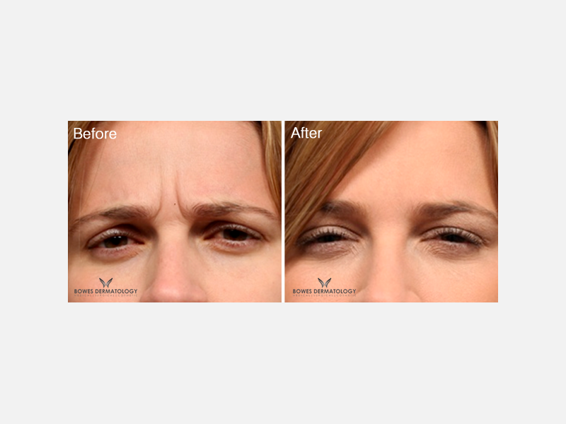 Botox® for Frown & Forehead Lines