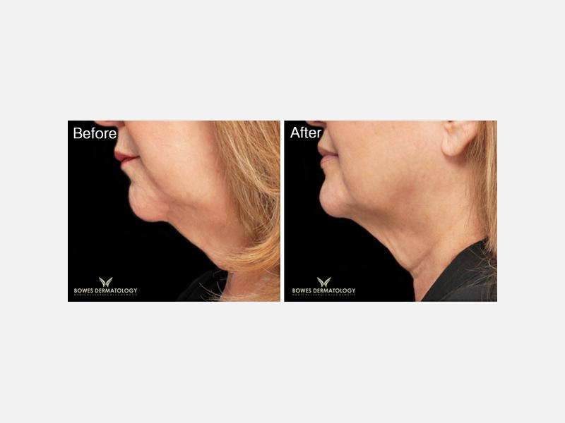 Botox® for Neck Lift