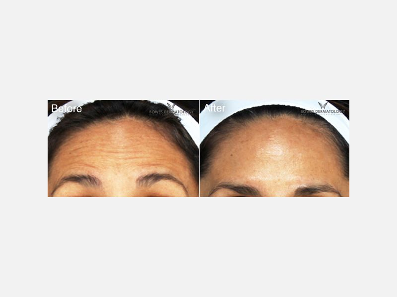 Botox® for Frown, Crows Feet & Forehead Lines