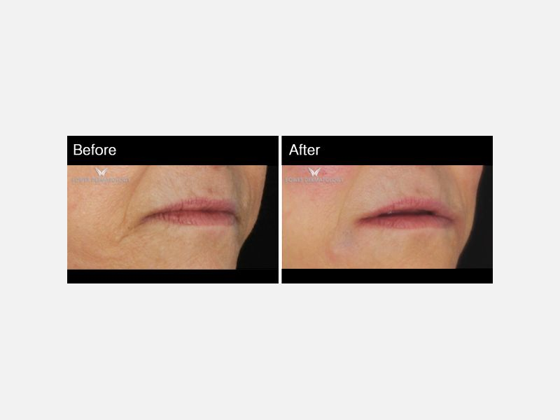Treatment with fillers (Radiesse & Juvederm) restored the volume on her cheeks naturally, and created a lifting of the corners of the mouth.