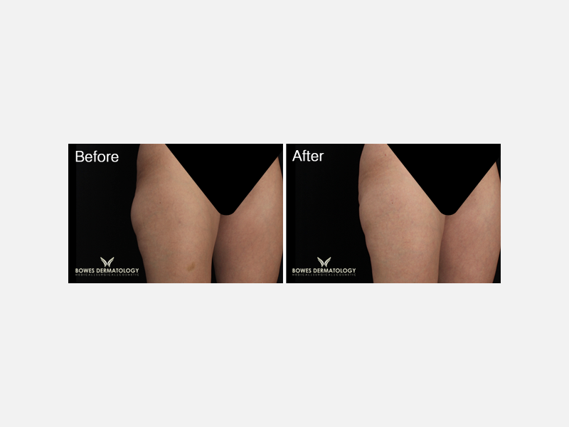 Thighs Treated with CoolSculpting®