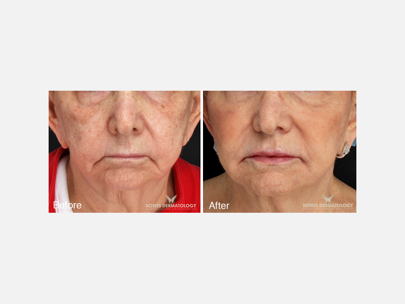 Juvéderm Voluma® XC for Lifting of the cheeks