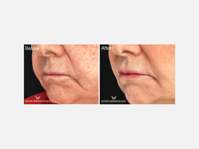 Lifting of the Corners of the Mouth with Juvéderm® Ultra Plus XC