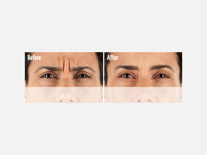 Frown Area Treated with Xeomin®