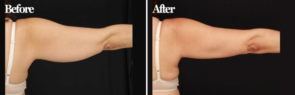 Arms Treated with CoolSculpting®