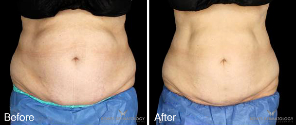 Abdomen & Flanks Treated with CoolSculpting®