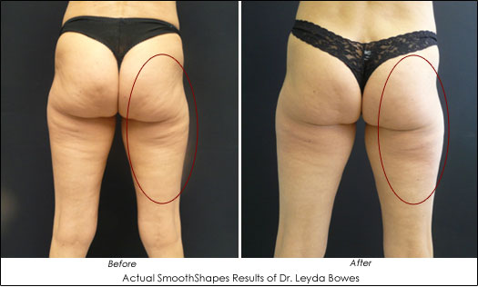 Beauty Tech Review: Cellulite Reduction - SmoothShapes