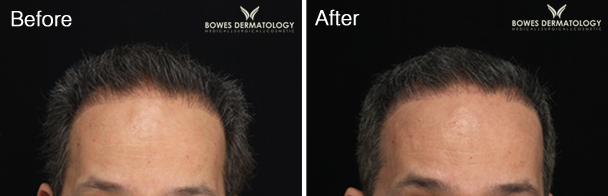 Hair Loss Treated with Platelet Rich Plasma (PRP)