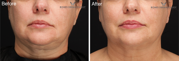 ePrime™ Provides Neck Tightening & Jaw Line Definition