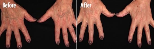 Hand Rejuvenation with Radiesse® Volumization & Fraxel® Laser Resurfacing