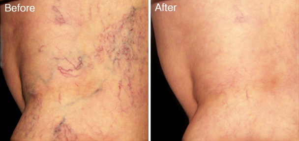 Resolution of Spider Veins after 1 Sclerotherapy Session with Polidocanol®