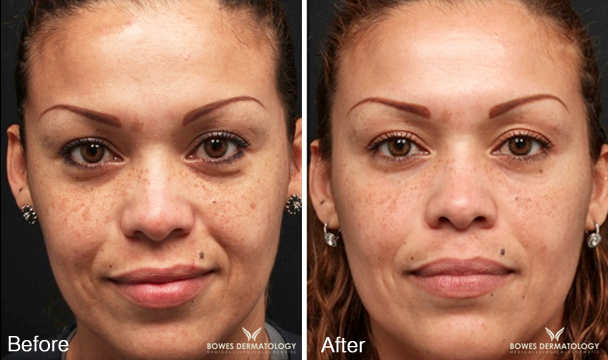 The Milk Peel for Melasma
