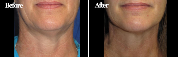 VelaShape® III for Neck Tightening & Jawline Definition
