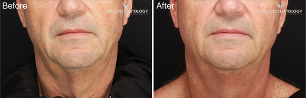 Neck Lifting & Tightening after two ePrime™ Treatments
