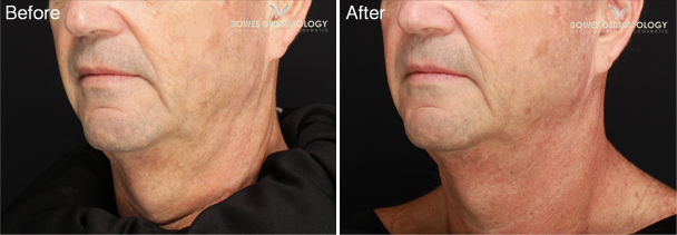 Profound™ to Treat Prominent Neck Laxity in a 55-year-old Man