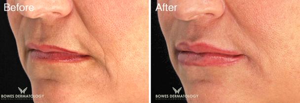 Lip Augmentation with Restylane® Silk