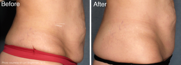 Tightening and Circumferential Reduction of the Abdomen with VelaShape® III