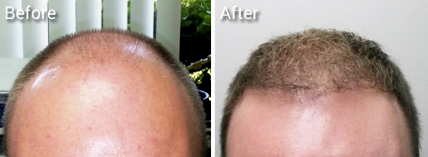 Hair transplant flexible for any hair style of your choice, short or long.