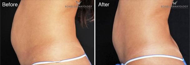 Abdominal Fat Reduction with UltraShape®