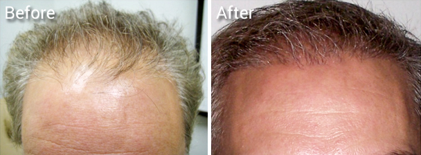 NeoGraft, no linear scar hair transplantation procedure.