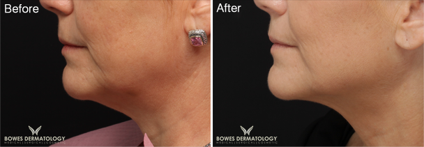ePrime™ Helps Define Jaw Line and Lift the Neck