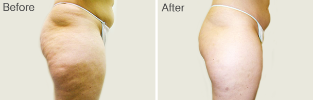 Cellulite Treatment with VelaShape® III
