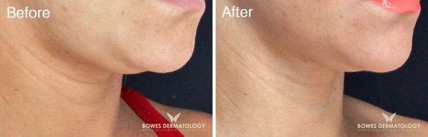Neck Tightening & Jawline Definition with VelaShape® III