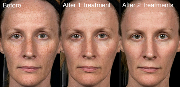 Multiple Cosmetic Uses of Fractional Lasers