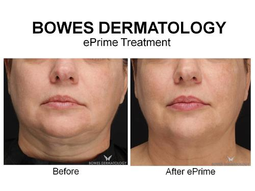 Bowes Dermatology Offers Advanced Radiofrequency Technology For Long-Lasting Face And Neck Rejuvenation