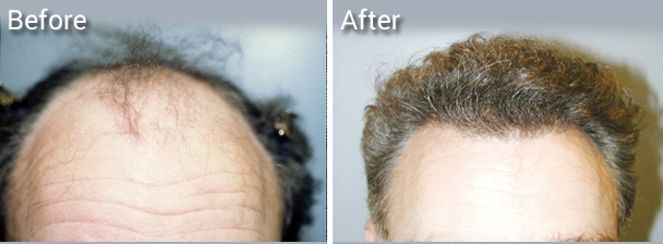 Shorter recovery time hair transplantation near me.