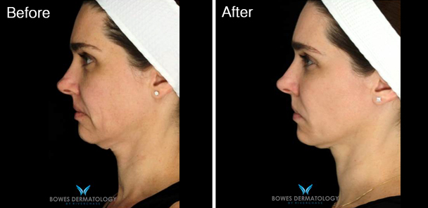 Correction of jowls with Profound™ Radiofrequency & Hyaluronic Acid Fillers