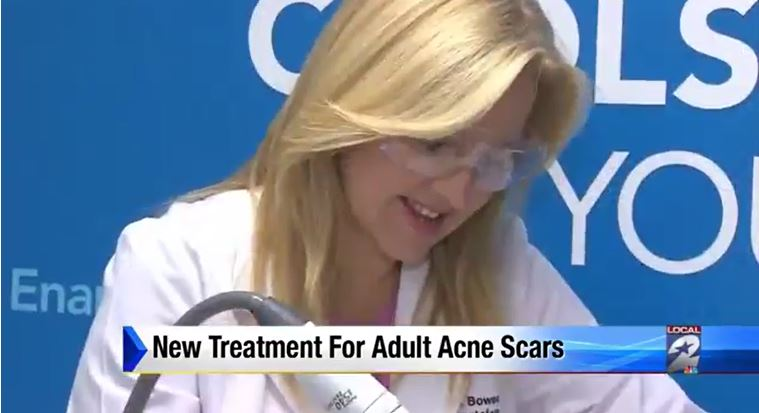 Laser surgery helps ease appearance of acne scars