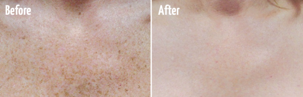 Lasers & IPL For Dark Spots