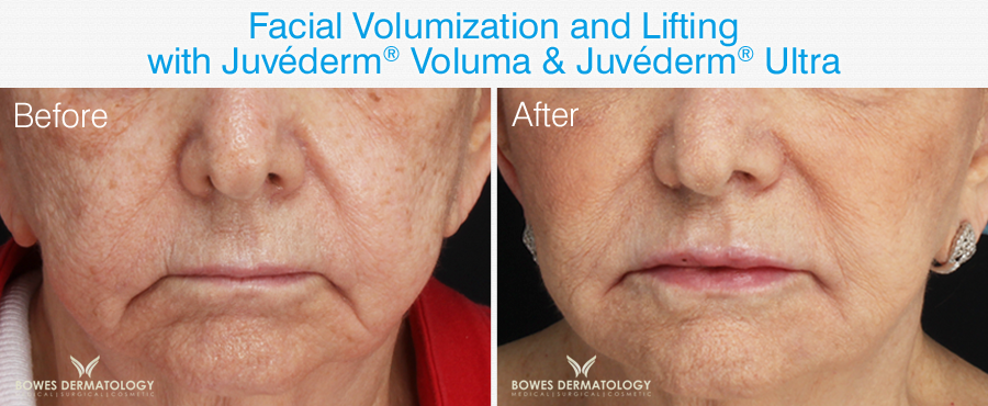Juvéderm® Voluma® used in order to lift nasolabial fold.