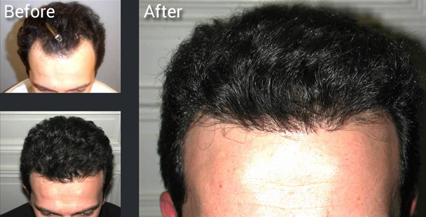 Before and after Neograft procedure results.
