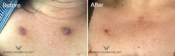 Pigmented Scars Treated with IPL Green and Icon® XD