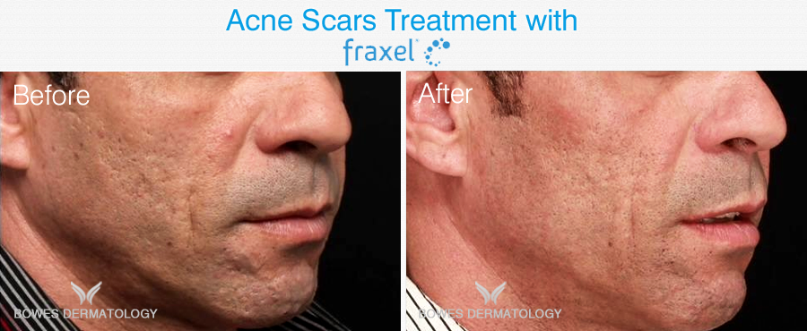 Fraxel used to treat acne scars