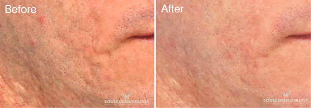 Acne Scars Treated with Subcision & Juvederm® Ultra XC