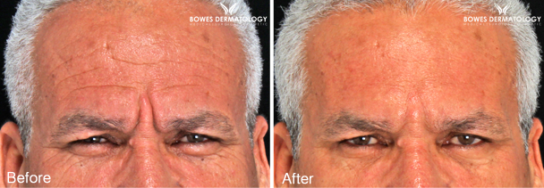 Forehead & Crows Feet Treated with Restylane® Silk & Dysport™