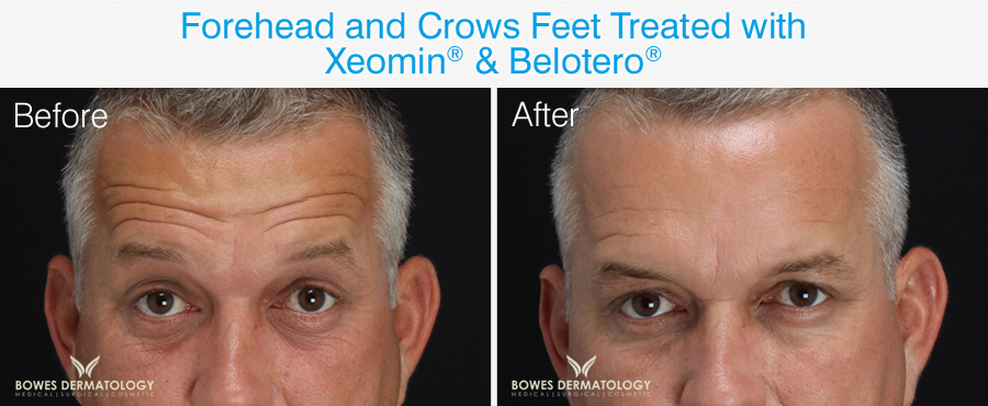 Belotero Filler for forehead and crows feet before and after photos.