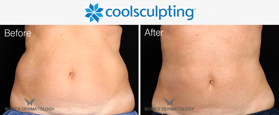 CoolSculpting to reduce fat for the abdomen and love handles