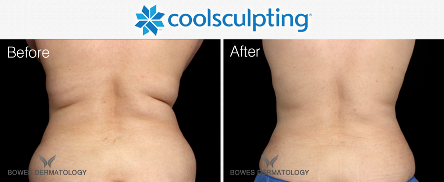 CoolSculpting for the love handles