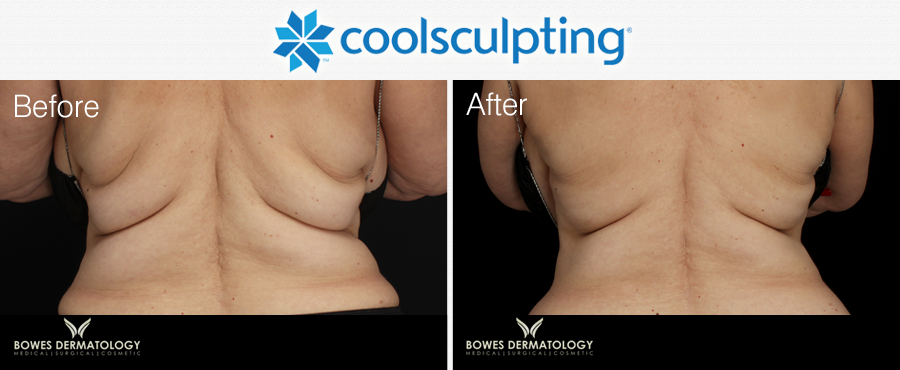 Fat reduction with CoolSculpting in Miami