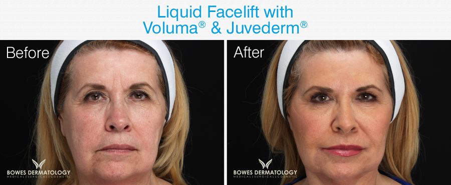 Facial lifting in Miami