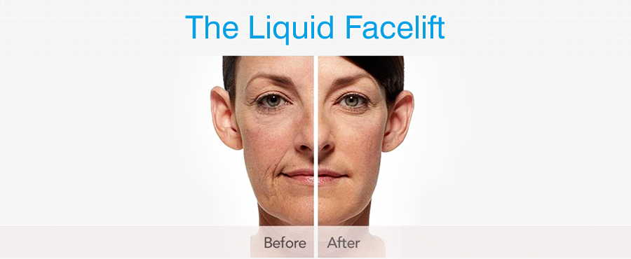 Liquid facelift performed by Bowes Dermatologist by Riverchase in Miami