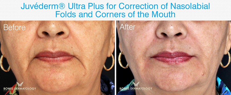 Juvéderm® Ultra Plus results achieved in our Miami office.