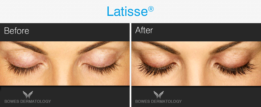 Latisse eyelashes treatment available at Bowes Dermatologist by Riverchase in Miami