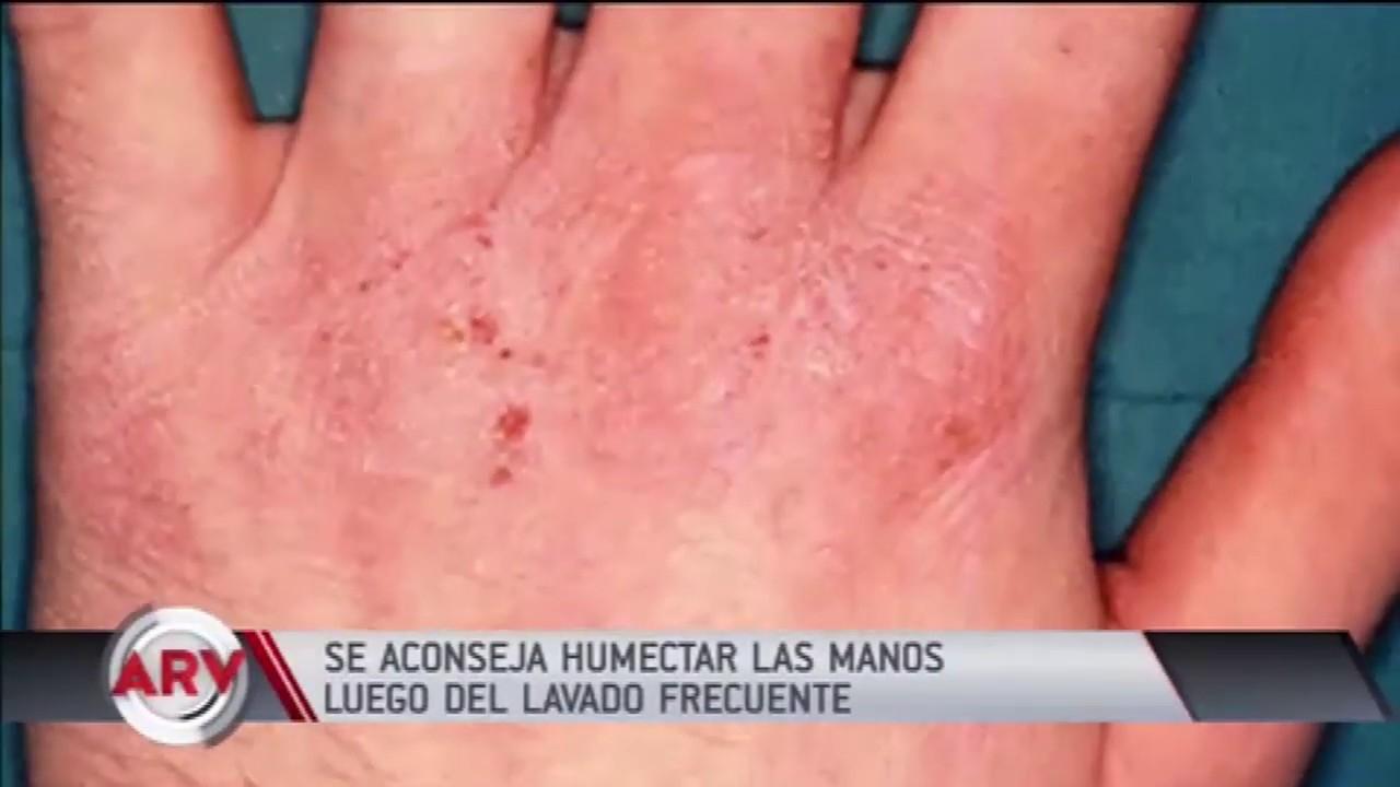 Coronavirus: Cómo cuidar tus manos del exceso de agua y jabón | Al Rojo Vivo | Telemundo