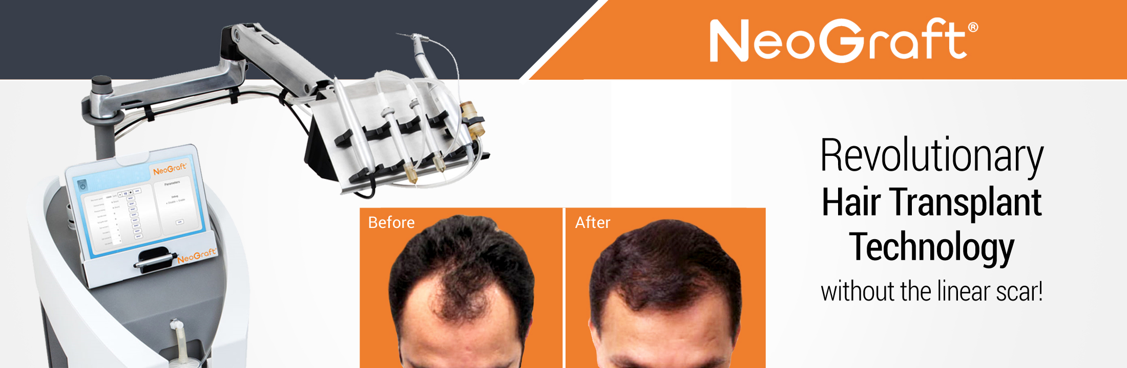 Hair Restoration with NeoGraft®