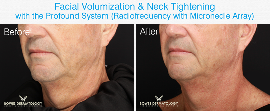 Neck rejuvenation Miami